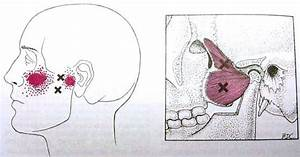 32 Best Images About Anatomy Of Tmj On Pinterest