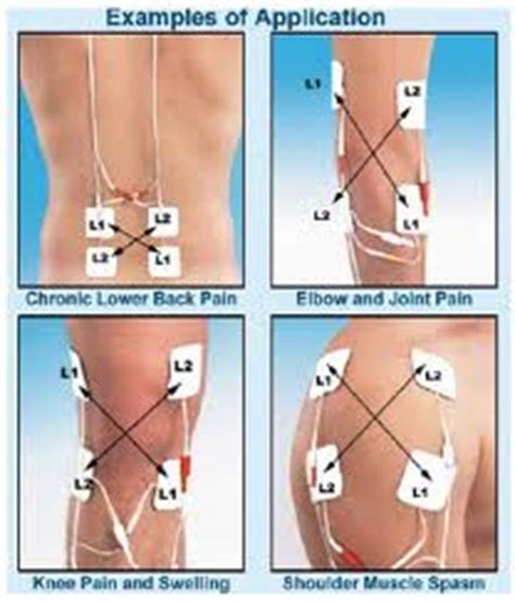 Meniscus, injuries Treatment & Management: Acute, phase, recovery Phase