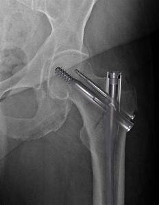 Affixus Hip Fracture Nail Surgical Technique
