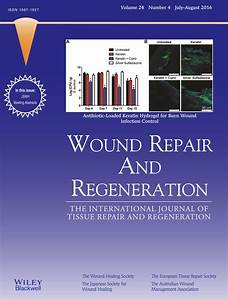 Macrophages  A Review Of Their Role In Wound Healing And