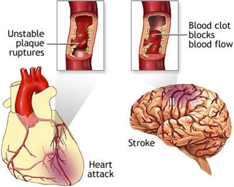 Juwita Blog Atherosclerosis Causes Risk Factors. Acrylic Signs Of Stroke. Hotel Floor Signs Of Stroke. International Traffic Signs Of Stroke. Dress Signs. Beautiful Thing Signs. 23rd December Signs Of Stroke. Basketball Uk Signs. Naruto Signs