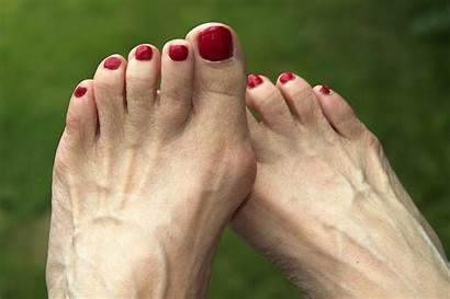 Foot Bunions Problems Common Center