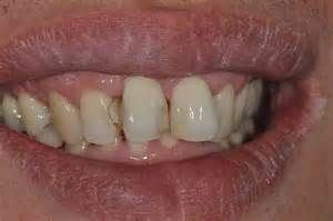 Cavity On Front Tooth Filling