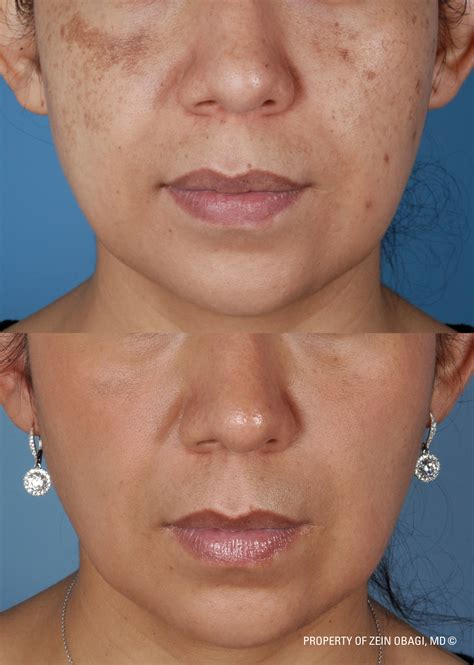 Hydroquinone Melasma How To Get Rid Of Melasma Uneven