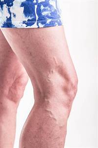 Why Some People Get Varicose Veins And Others Don U0026 39 T  North