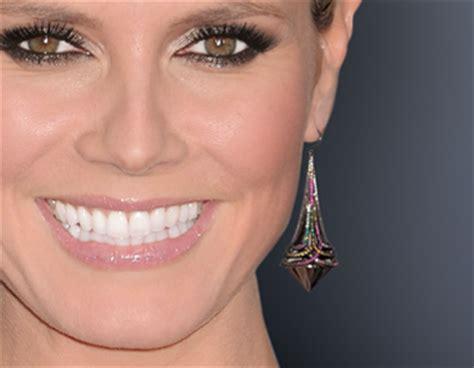 veneers   face shape hot topic newbeauty