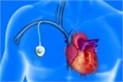 pose de chambre implantable technique mise en place d 39 une chambre implantable pour chimiotherapie