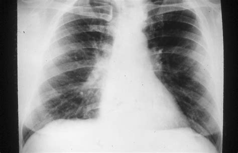 asbestos related pulmonary disorders  clinical advisor
