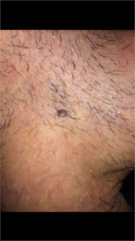 patch point noir maison solution contre les cicatrices d acn 233 2013