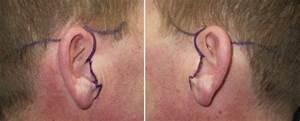 Mini face lift incisions