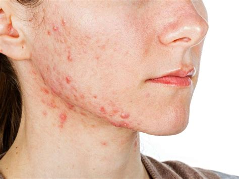 Acne Causes Treatment And Tips