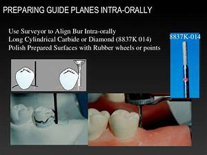 Removable Partial Denture Survey Lines  Path Of Insertion