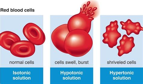 types  solutions isotonic hypotonic hypertonic infovisual