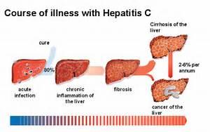 Hepatitis C - Life Relay Health Care Solutions  Hepatitis Infections