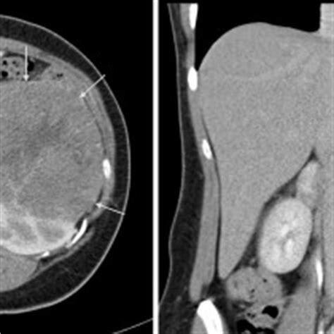 cannonball metastases cxr radiology  st vincents