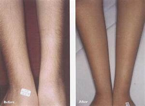 Laser Hair Removal - Laser Hair Removal Effectiveness ...