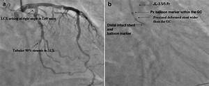 E A  Diagnostic Coronary Angiography Showing Target Lesion
