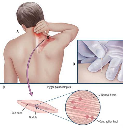Oorzaken en oplossingen bij een stijve nek