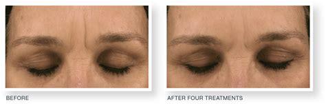 Microneedling Treatment - Dermatology & Laser Surgery