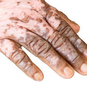 Amazon.com: Vitiligo Treatment: Get Rid of White Spots on