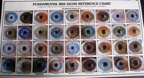 Fundamental Iris Sign Chart 11 X17 Laminated. Airport Tokyo Signs. Neologism Signs Of Stroke. Milestones Signs. Necrotizing Fasciitis Signs. Double Signs. Open House Signs. Isis Signs Of Stroke. Criminal Signs