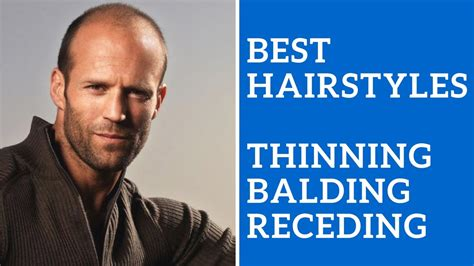 Best Men's Hairstyles for Thinning Hair, Balding Hair, or