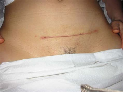 c section incision abdominal myomectomy fibroids a gynecologist s second