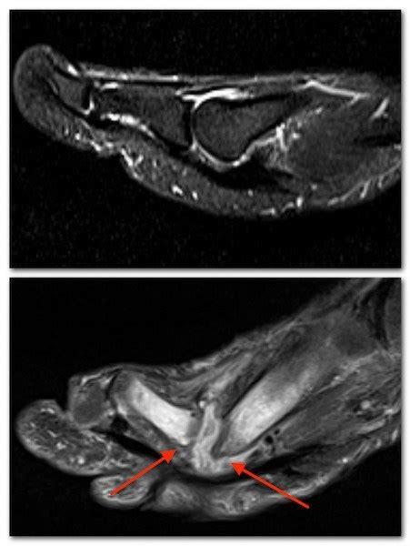 toe bone osteomyelitis edema marrow telltale reactive arthritis mri septic cause bony