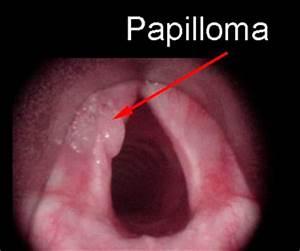 Лечение папиллом на язычке в горле