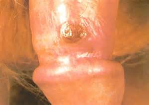 syphilis_primary_chancre1338469135241.jpg Syphilis - primary