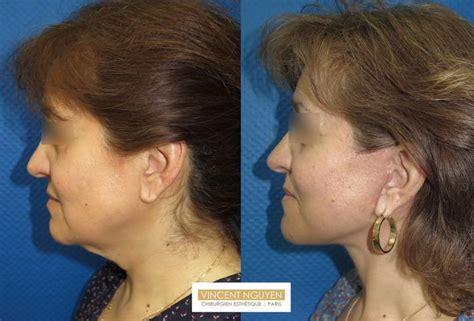 Lifting Visage Et Cou Ou Lifting Frontal Paris Chirurgie