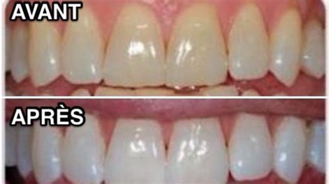 comment avoir des toilettes blanches comment avoir des dents blanches en un rien de temps