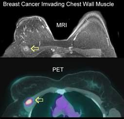 pet scan vs cat scan breast pet scans