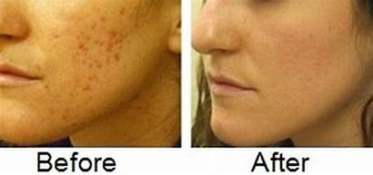 Acne Scars Difference Between Skin Scar