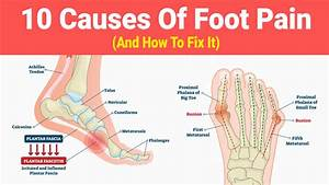 10 Causes Of Foot Pain  And How To Fix It