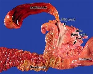 Pancreas  Whipple