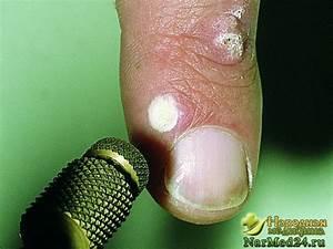 Лечение бородавок рязань