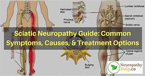 Sciatic Neuropathy Guide  Symptoms  Causes   U0026 Treatment