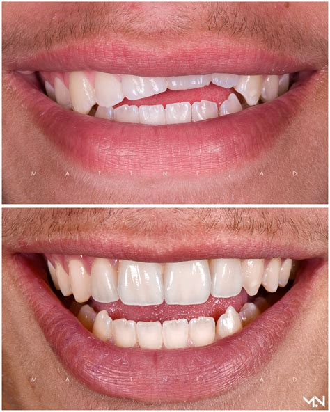 beverly hills cosmetic dentist west hollywood smile