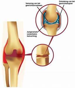 Pijn in knie : oorzaken behandelen