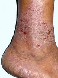 obat manjur obat eksim pada kulit kaki dan sela kaki
