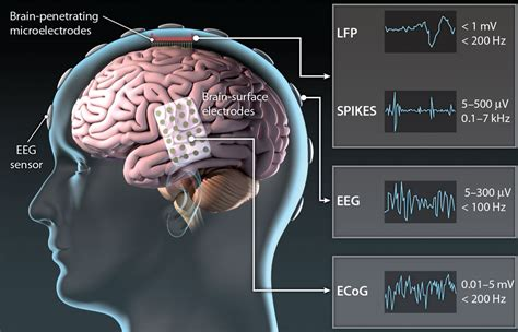 translating  brain machine interface science