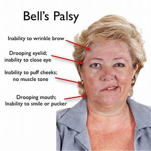 Differentiating Facial weakness caused by, bells Palsy