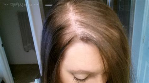 My Post Pregnancy Hair Photo