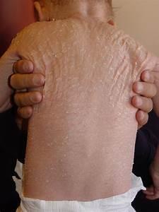 Ichthyosis  Lamellar  Erythroderma Ichthyosiforme