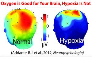 HYPOXIA IN FLIGHT – SAFE Educational Opportunities! Cerebral Hypoxia