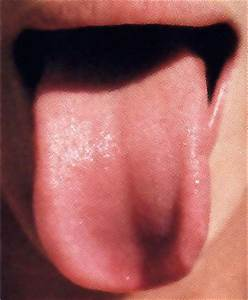 What your TONGUE says about your health: Leading expert ...