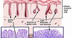 Ulcerative Colitis  Uc   An Inflammatory Disease Of The Mucosa Of The Rectum And Colon  Uc Often
