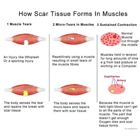 how does scar tissue form in muscles yelp