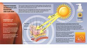 Learn About Solar Uv Radiation And Skin Cancer
